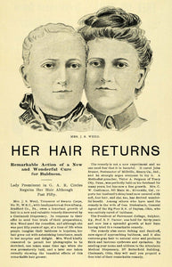 1899 Ad Female Baldness Cure J. S. Weed Swartz Corps - ORIGINAL ADVERTISING LOS1