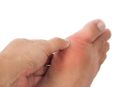 foot with gout