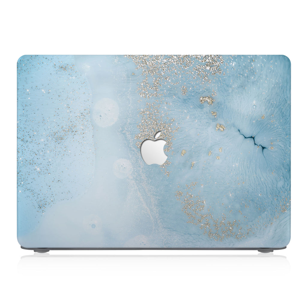 This lightweight, slim hardshell with Marble Gold design is easy to install and fits closely to protect against scratches