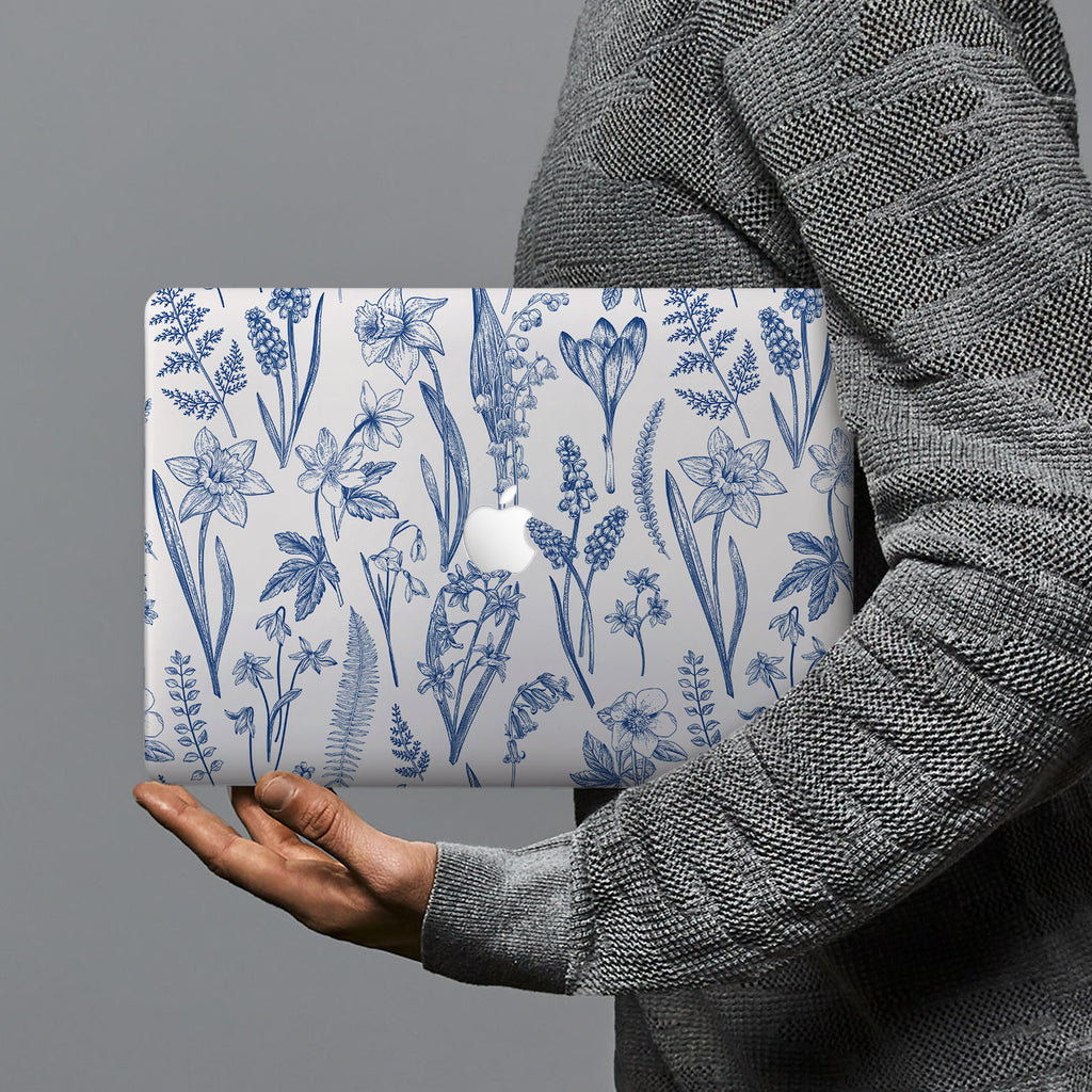 hardshell case with Flower design combines a sleek hardshell design with vibrant colors for stylish protection against scratches, dents, and bumps for your Macbook
