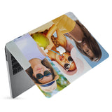 hardshell case with Photo Collage design has matte finish resists scratches