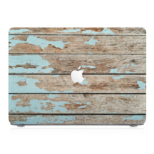 This lightweight, slim hardshell with Wood design is easy to install and fits closely to protect against scratches