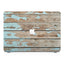 Macbook Premium Case - Wood