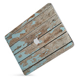 Protect your macbook  with the #1 best-selling hardshell case with Wood design
