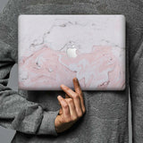 Form-fitting hardshell with Pink Marble design keeps scuffs and scratches at bay