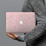 hardshell case with Baby design combines a sleek hardshell design with vibrant colors for stylish protection against scratches, dents, and bumps for your Macbook