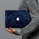 hardshell case with Galaxy Universe design combines a sleek hardshell design with vibrant colors for stylish protection against scratches, dents, and bumps for your Macbook