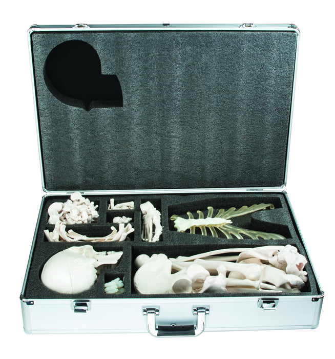 Disarticulated Skeleton with Case