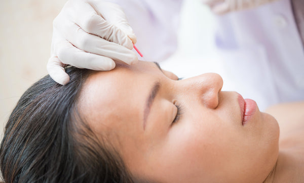 Can Acupuncture be beneficial for your skin?