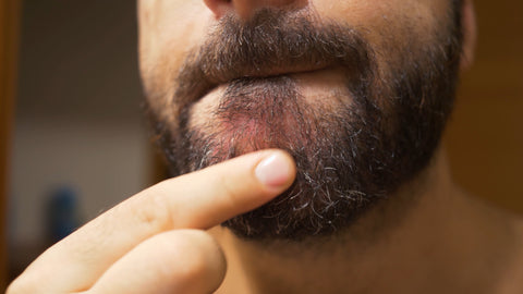 picture of flaky red dry skin under a beard