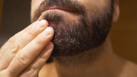 man scratching his beard