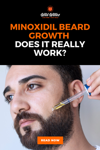 Does rogaine work on beards?