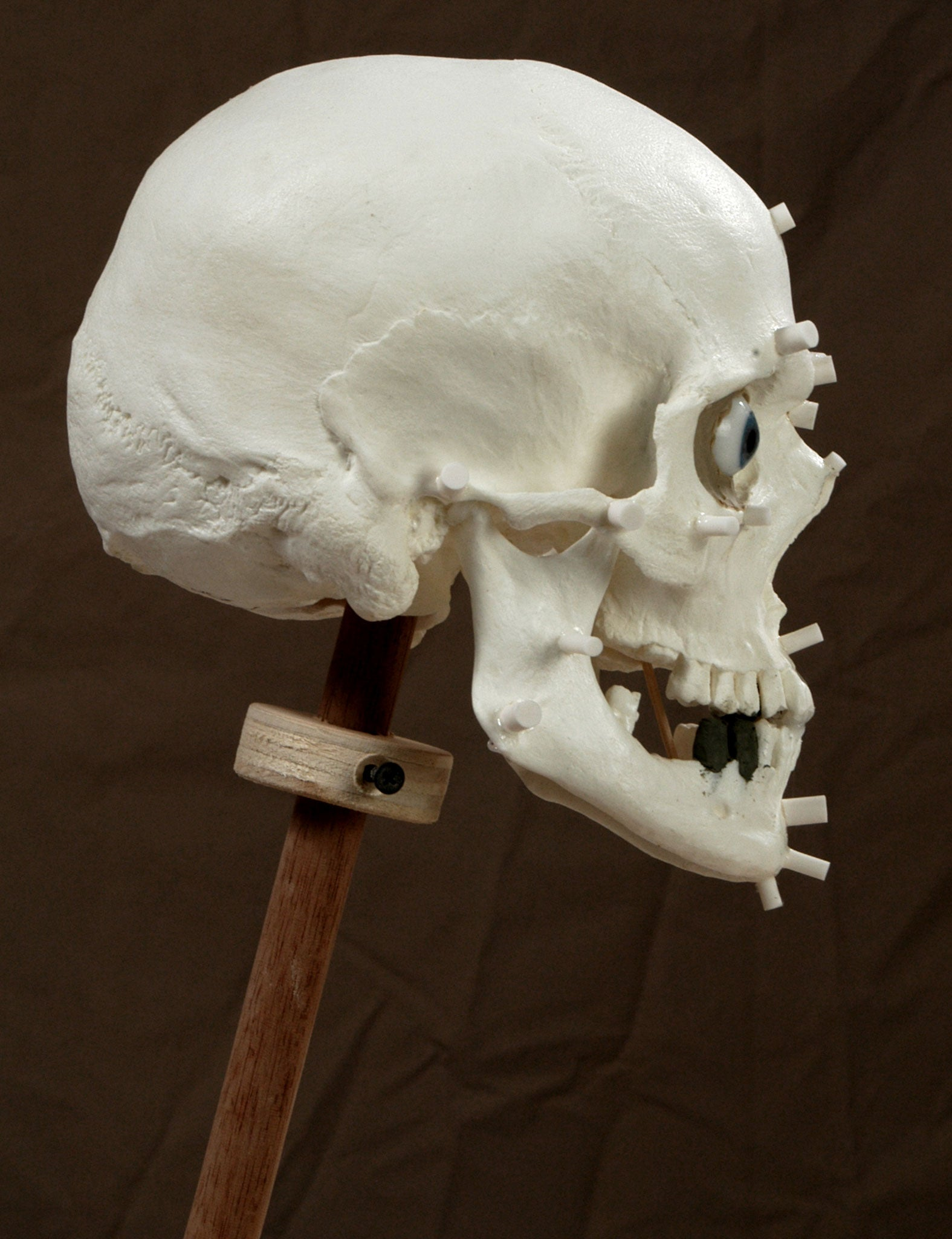 Forensic Reconstruction skull with markers by Philippe Faraut