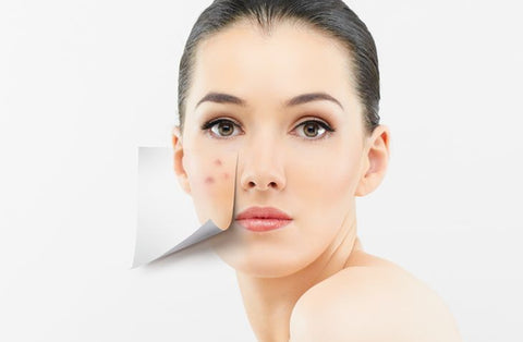 ACNE CARE-SHOPWELLNESSONLINE.COM