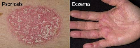 psoriasis and eczema-shopwellnessonline.com