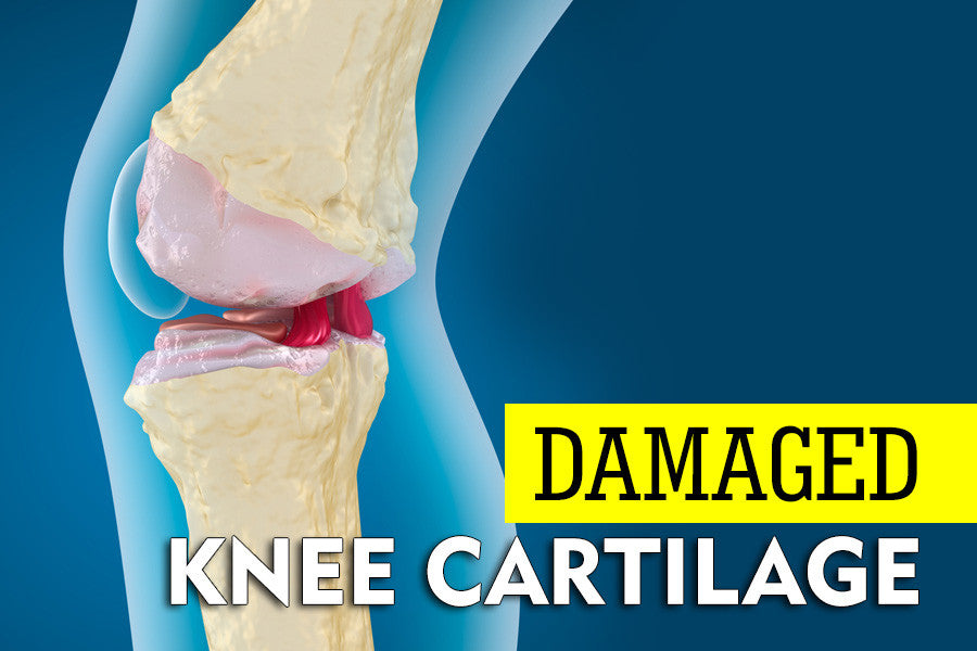 The Best Exercises for Damaged Knee Cartilage