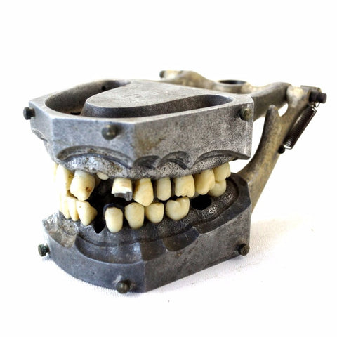 Vintage Metal Dental Model with Teeth and Fillings (c1960s) - thirdshift