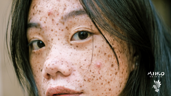 young asian woman with acne