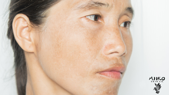 Asian woman waring no makeup is looking off camera, shot against a white background