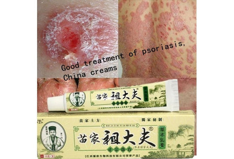 Psoriasis, dermatitis and eczema, pruritus psoriasis skin problems, China creams psoriasis creams [9325747972]