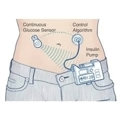 Pump it up:  Continuous Glucose Monitor (CGM)