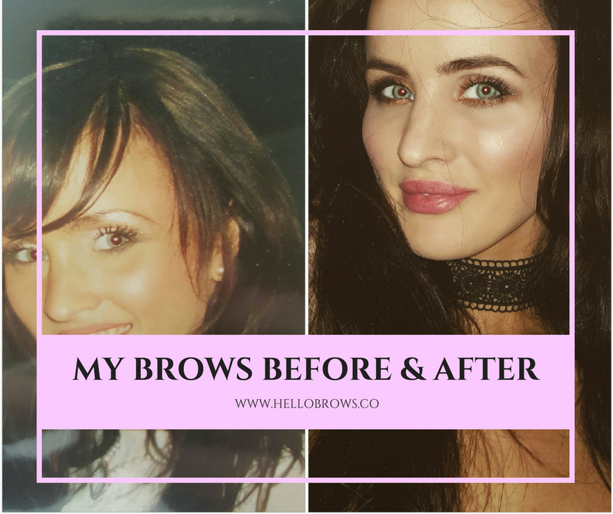 Case Study Sarahs Eyebrow Regrowth Story Hellobrows