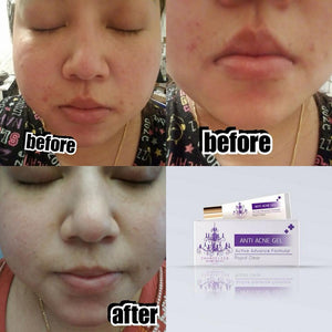 chandelier skin care : Anti Acne 10-1-6010043501