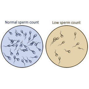 A low sperm count is called oligospermia, and an absence of sperm count is called azoospermia
