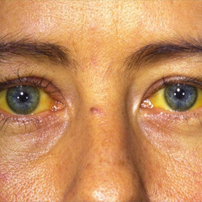 Jaundice (yellow discoloration of the skin)