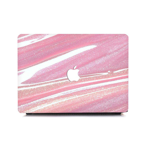 Macbook Case - Glittery Pink