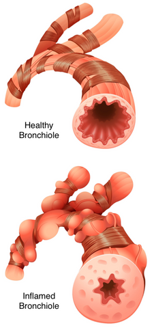 Health and Inflamed Bronchiole Comparison