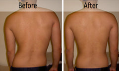 scoliosis, before and after, alignment, posture, pureposture