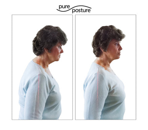 buffalo hump, posture, spinal alignment, Cushing's Disease, pureposture