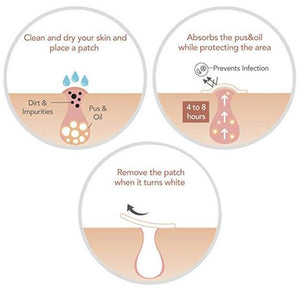 Skin Tag and Acne Healing Patch