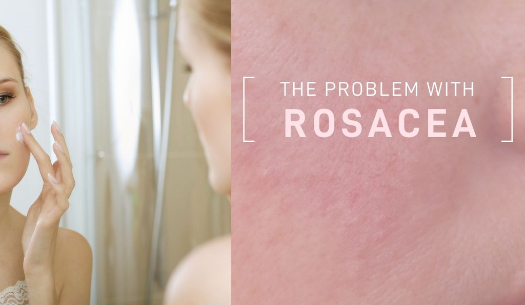 The Problem with Rosacea