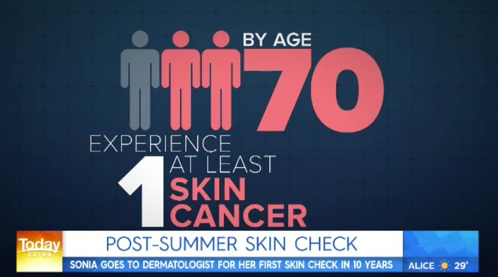 MEDIA - Dr Natasha Cook takes Sonia Kruger through a skin cancer check