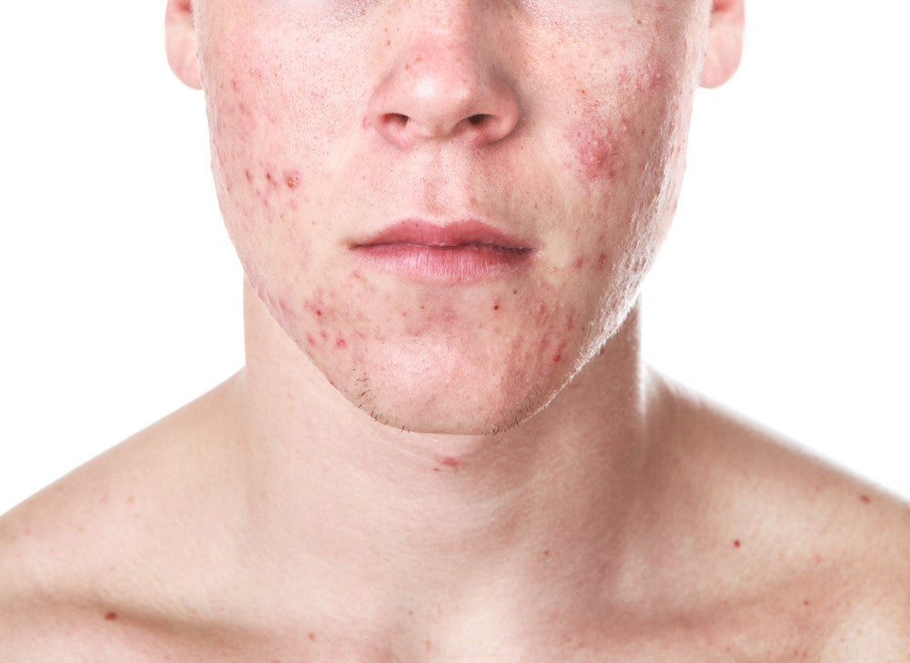 Essential six series—Acne: part two