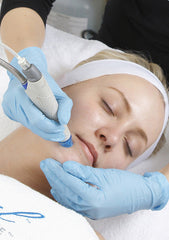 Laser Treatment for pores