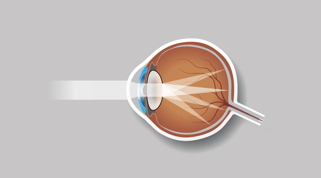 What is the main cause of astigmatism