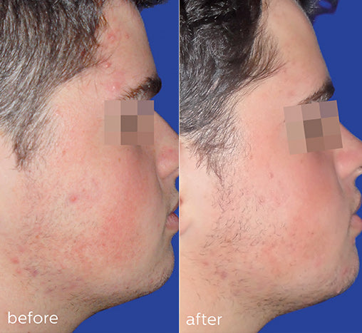 homecare-acne-before-after
