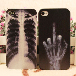 Punk X-ray Skeleton Iphone Cases For Iphone 4/4s/5 - lilyby
