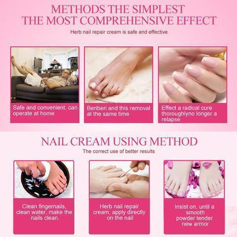 Nail Repair Cream | Get 3 For $29.99 Instead Of $45 - creative watcher
