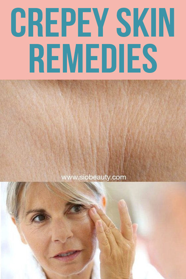 crepey skin remedies