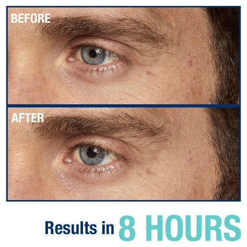 For Men How To Use Eye Cream For Younger Looking Skin 5 Easy Steps
