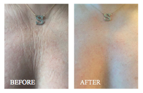 Gigi Howard chest Before and After