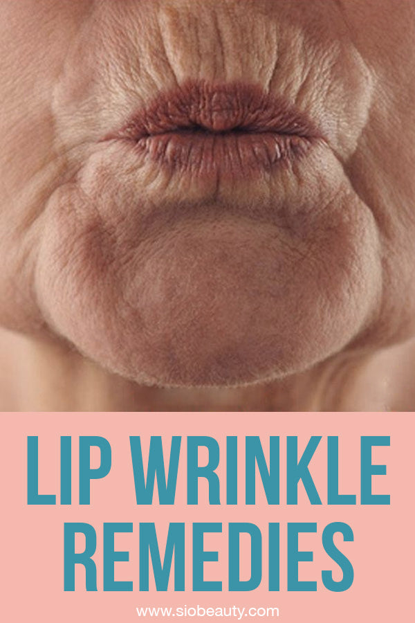 upper lip wrinkles