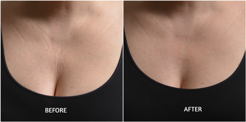 SiO Beauty Decolletage Wrinkles
