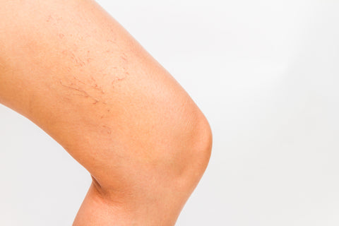 Spider Veins On Your Face What Causes Them How To Treat Them