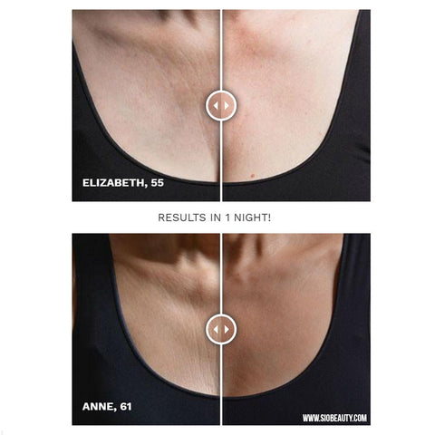 Chest wrinkles before and after SiO beauty