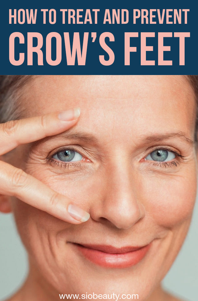 crows feet
